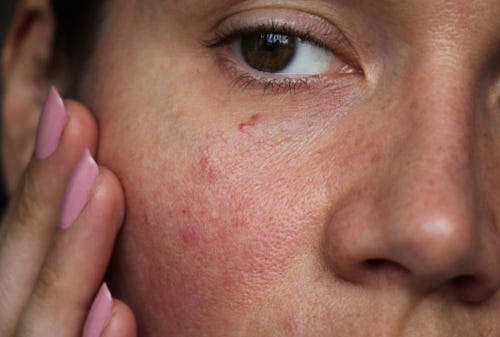 learn how to take care of sensitive skin